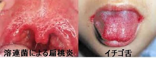 溶連菌の喉