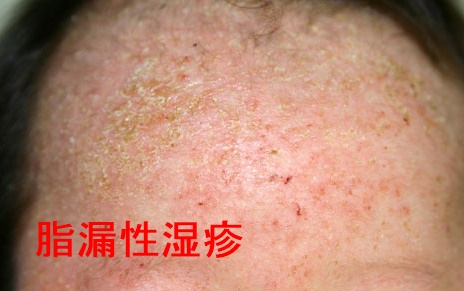 脂漏性湿疹